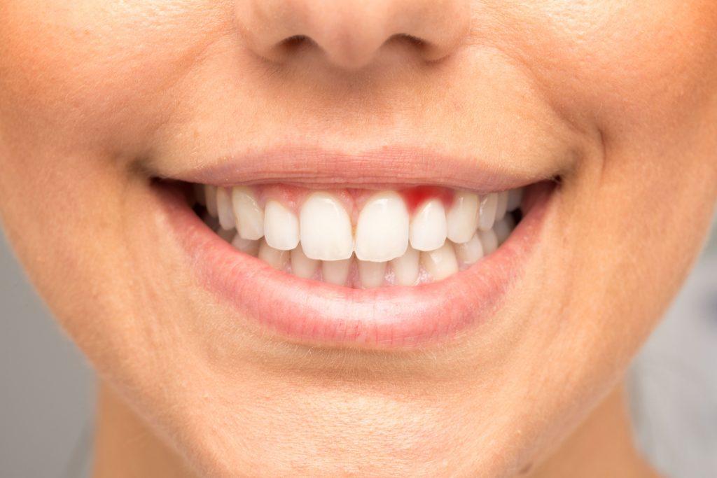 лечение десен от stomatologiya-konova.com
