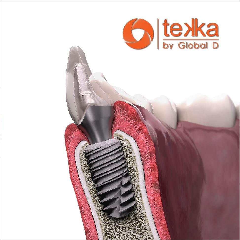 имплантация зубов от https://stomatologiya-konova.com/