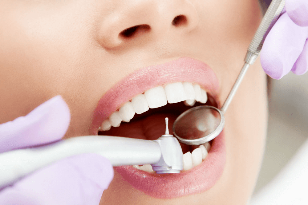 лечение зубов в Киеве от stomatologiya-konova
